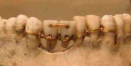 Ancient_Egypt_Dentistry